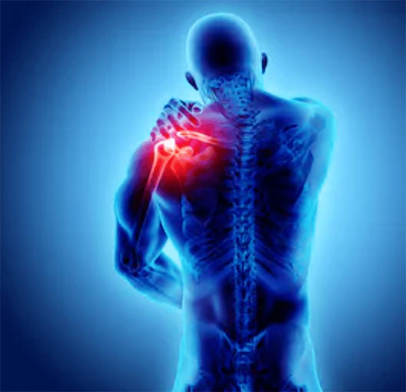 野球において肩障害はとても多い物です。